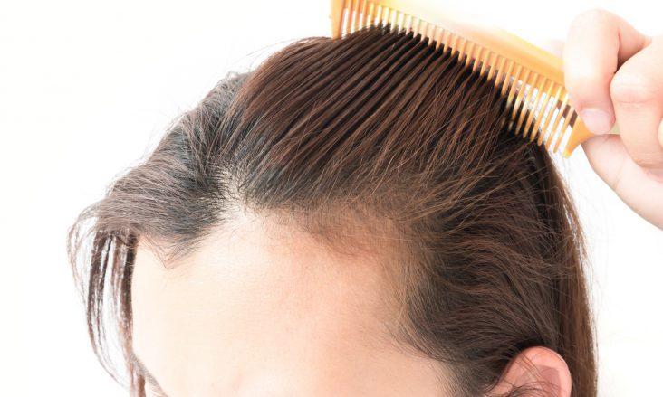 Kadınlarda Saç Kaybı