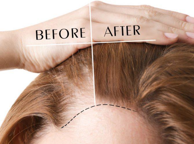 Hair Transplantion For Ladies